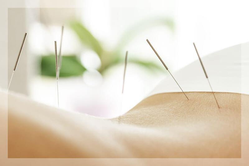Acupuncture Treatment Near Me by Peak Day Spa located in Salt Lake City near Sugar House and Millcreek