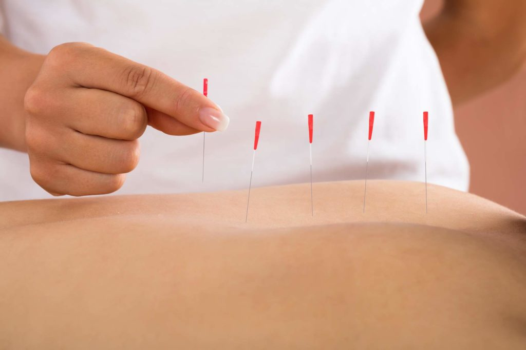 Acupuncture treatments at Peak Day Spa